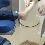 foot in plaster casting for orthotics